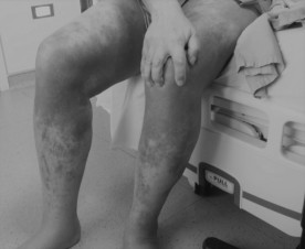 chemo legs-mercury